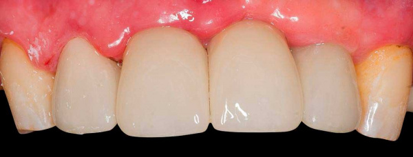 Ceramic crowns for frontal teeth rehabilitation
