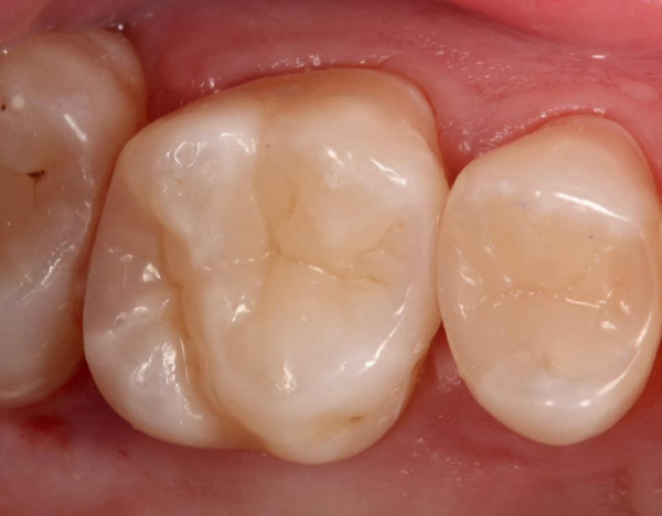Treatment of dental caries: tooth number 16
