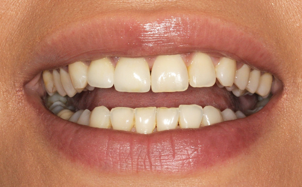 Correction of front teeth using crown and restoration