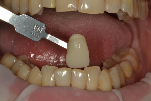 Comprehensive rehabilitation 'ALL ON 28' - installation of 28 ceramic crowns
