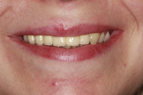 Replacing ceramic gums on human