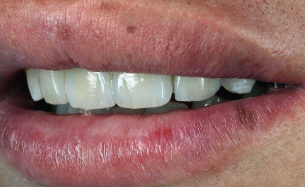 Immediate dental implantation in the area of the central incisor and restoration of the aesthetic profile in the front area