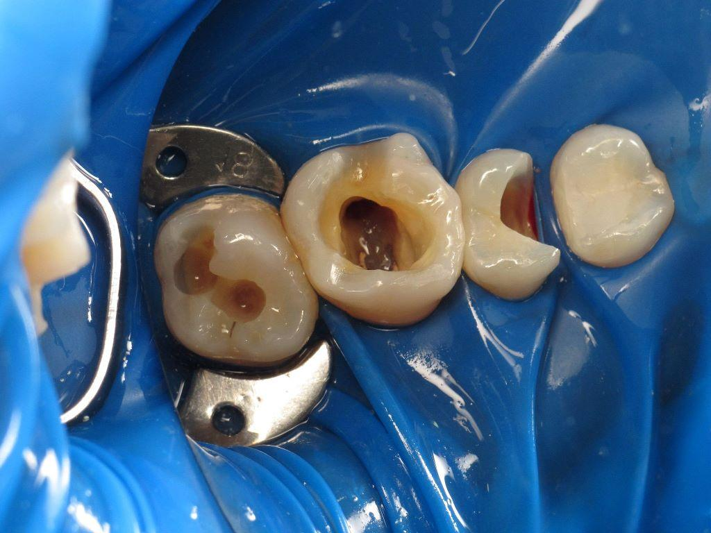 Caries treatment and replacement of fillings with Art restorations