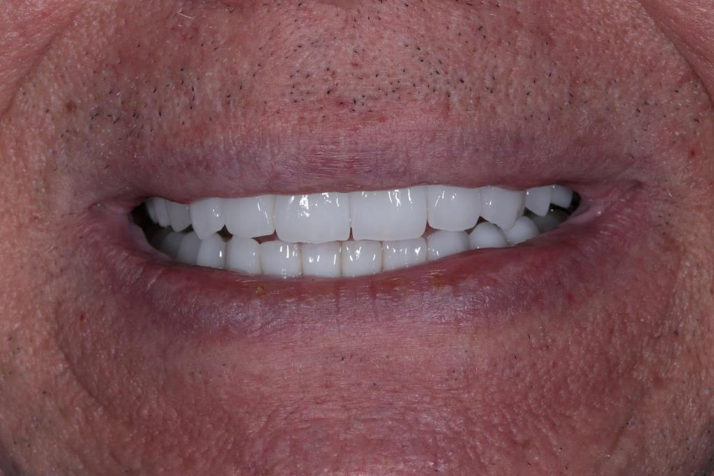 Total prosthetics of the upper and lower jaw of the patient with zirconia crowns on implants and E.max veneers
