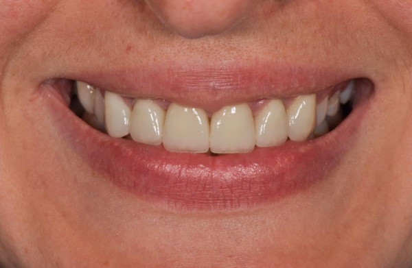 Restoration of 6 front teeth after orthodontic treatment with E-max