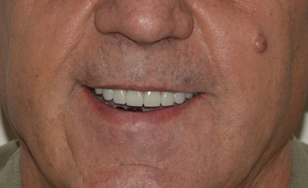 Removing teeth on the upper jaw and installing four Nobel implants in the concept 'ALL-ON-4'