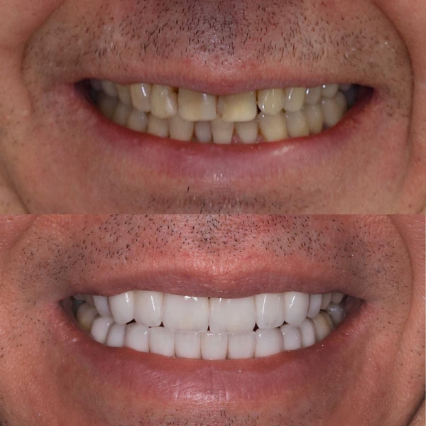 Esthetic rehabilitation with veneers with pre-orthodontic preparation of the lower jaw