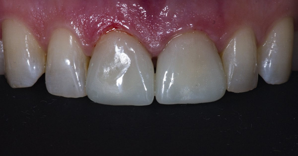 The patient applied to the dental clinic to improve the aesthetic of two front teeth