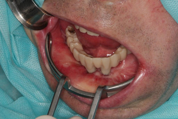 Reconstruction of the lower jaw using a fibular autograft with dental implantation and immediate crown loading