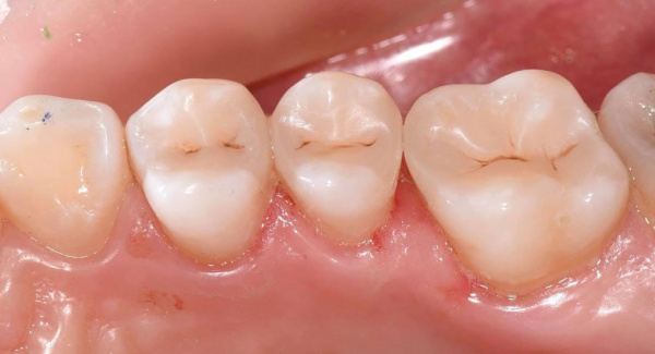 Treatment of dental caries by a direct method using modern composite materials