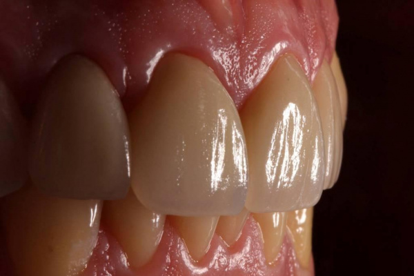 Aesthetic smile rehabilitation with lithium disilicate ceramic restorations