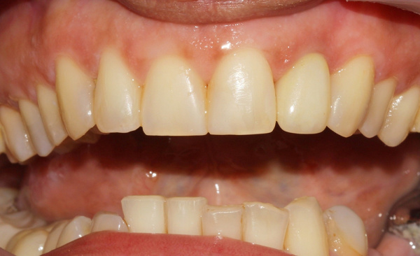 The restoration of front teeth using crown and composite material