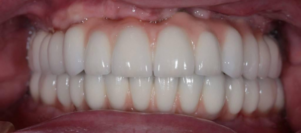 Total reconstruction of dentitions using metal-ceramic implant-supported fixed dental prostheses