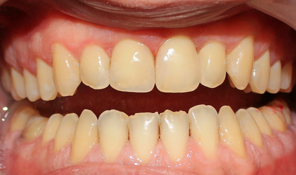 Aesthetic restoration of front teeth