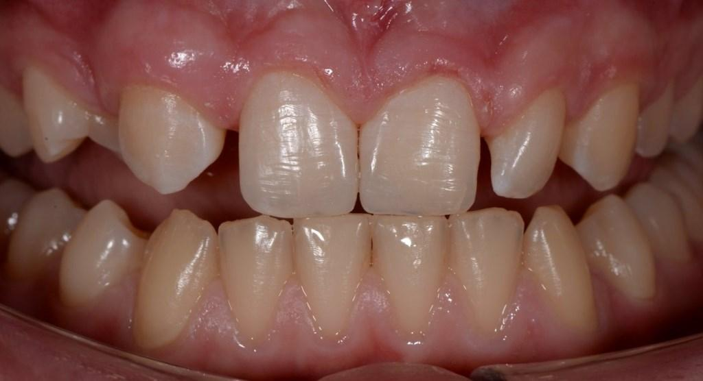 Traumatic chipped teeth of a 13-year-old child
