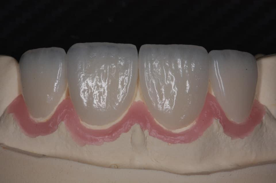 E-max veneers after orthodontic treatment