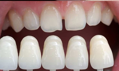 Aesthetic correction of the smile using veneers