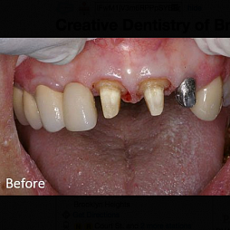 Creative Dentistry of Brooklyn Heights